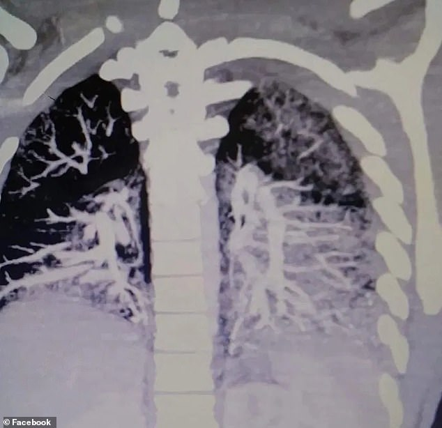 Scans+show+vaping+can+block+your+lungs+with+solidified+oil.+Photo+courtesy+of+DailyMail.com.